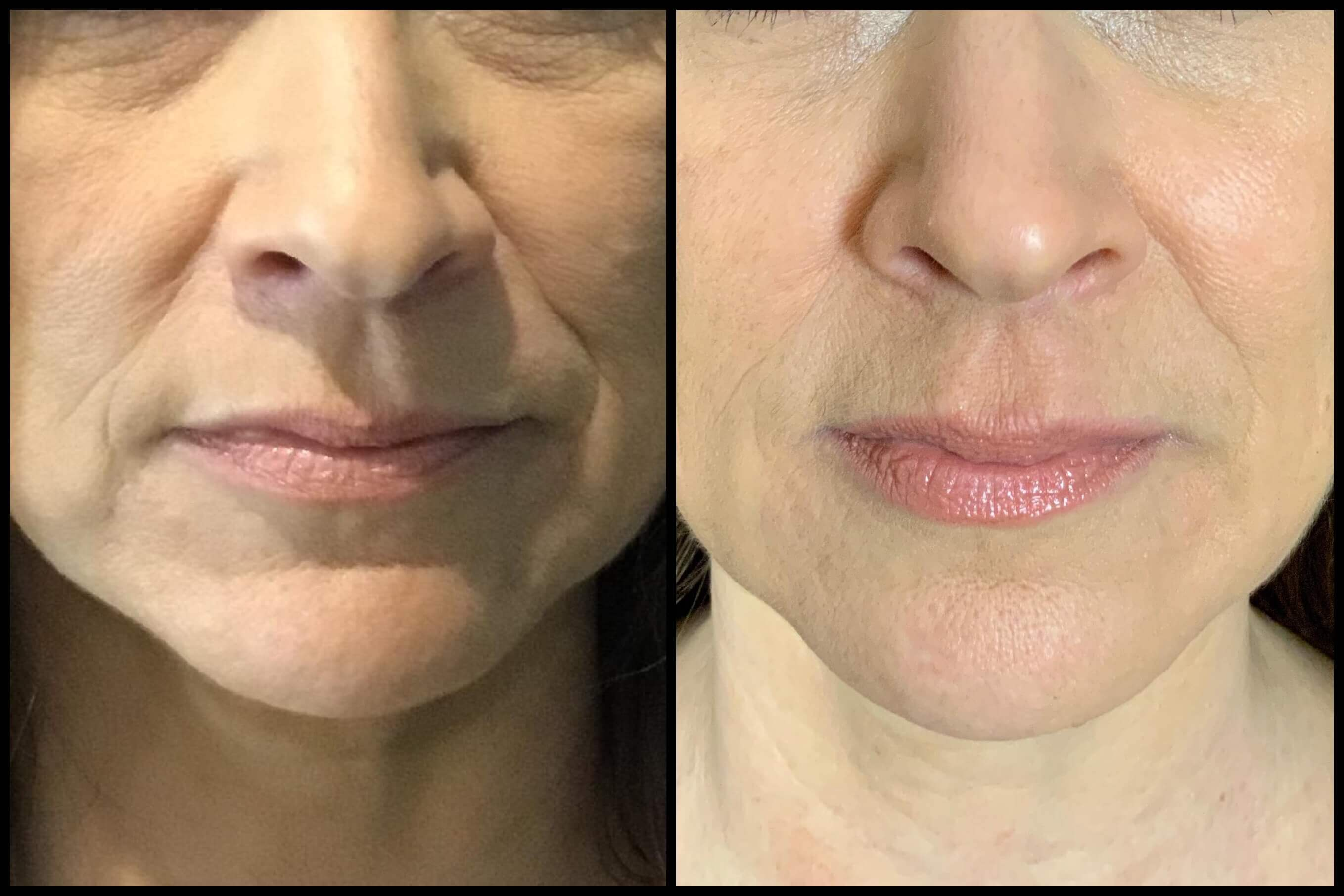 Facial Filler Before And After 05 Bella Vi